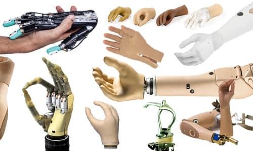 انواع پروتز دست