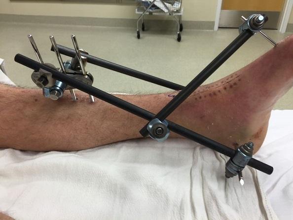 اکسترنال فیکساتور (فیکس و بی حرکت کننده) :درمان شکستگی استخوان