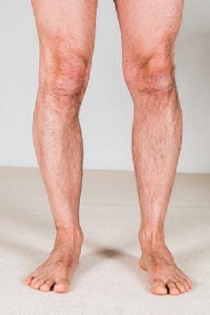 درمان جابجایی کشکک زانو با ورزش، فیزیوتراپی و جراحی