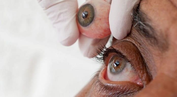 سوالات متداول پروتز چشم