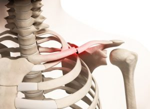 علت شکستگی استخوان ترقوه