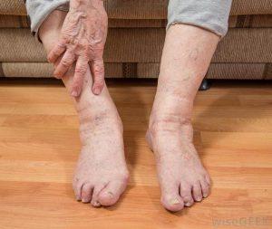 چه افرادی میتوانند از کفش طبی استفاده کنند؟