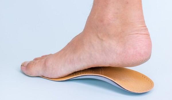 استفاده از ارتزها یا کفیهای طبی برای درمان صافی کف پا