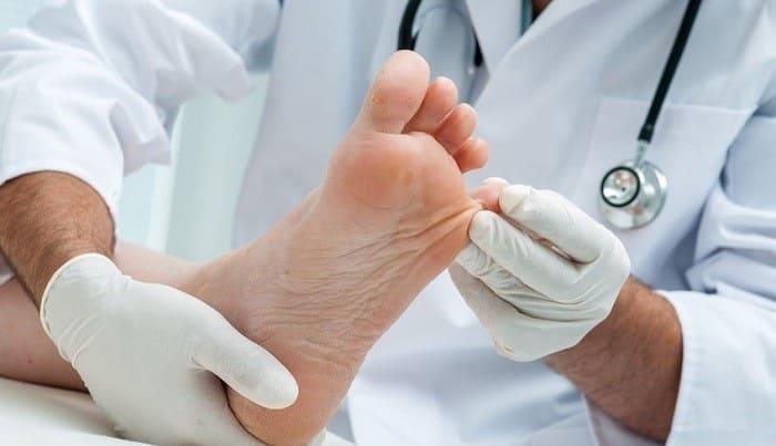 پیشگیری از زخم پای دیابتی با کفش مناسب و کنترل قندخون و وزن