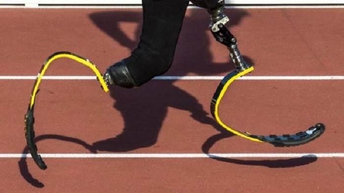 پروتز پا برای دویدن