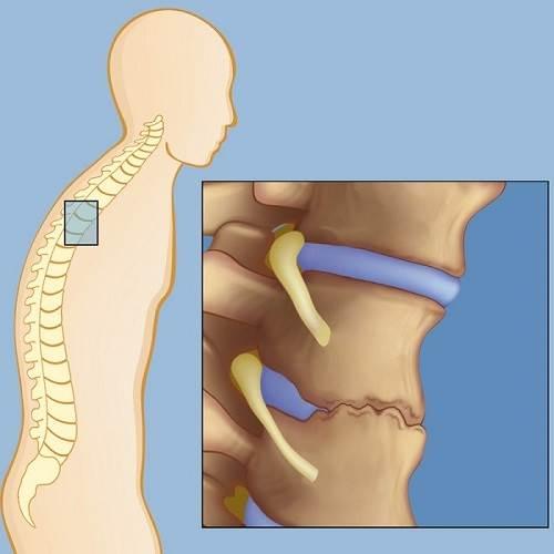 علائم بیماری اسپوندیلیت انکیلوزان