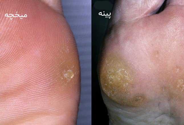 میخچه پا چیست