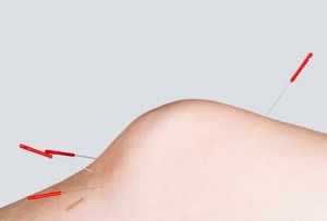 getty_rm_photo_of_acupuncture_in_knee